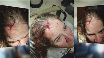 Quadriplegic says American Airlines caused her to take bloody fall on plane, blamed her