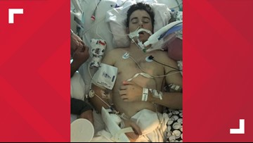 Vaping Caused Texas Teen's Lungs To Fail, Doctors Say