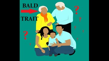 Don't Be Blaming Your Mom For Your Baldness! It's Not Her Fault.