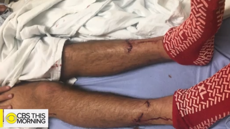 Calif. man attacked by Great White Shark