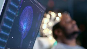 Brain Tumor Device By Duke Engineer Gains FDA Breakthrough Status